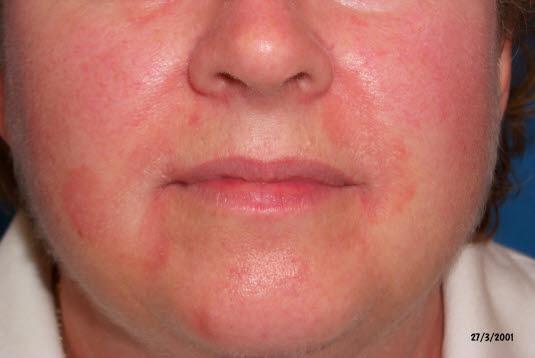 Seborrhoisches Ekzem, im Gesicht (Nasolabialfalten)