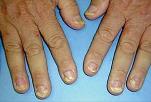 Onycholyse: der Nagel löst sich vom Nagelbett; dies ist bei Psoriasis nicht ungewöhnlich.