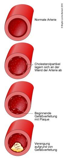 "Arteriosklerose (""Arterienverkalkung"")"