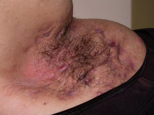 Hidradenitis suppurativa: Ständige Rezidive können zu Narbenbildung, die häufig als Strang in der Subkutis tastbar ist, oder zu Fistelbildung führen.