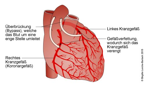 Herz mit Bypässen der linken und rechten Koronararterie