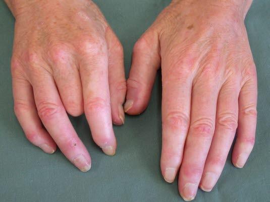 Durch systemische Sklerose kann es zu kleineren Veränderungen wie Sklerodaktylie, Erosionen und Atrophie der Fingerspitzen kommen.
