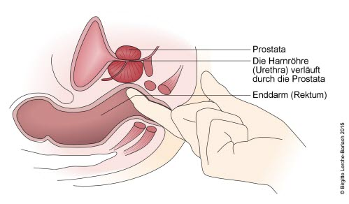 Untersuchung der Prostata