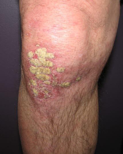 Vor allem werden die Extensorseiten von Psoriasis befallen. Knie, Ellenboden und Kopfhaut sind die üblichsten Lokalisationen.
