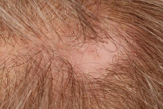 Typisch ist stellenweiser Haarausfall in einem kreisförmigen Bereich mit glatter Kopfhaut und ohne Narbenbildung.