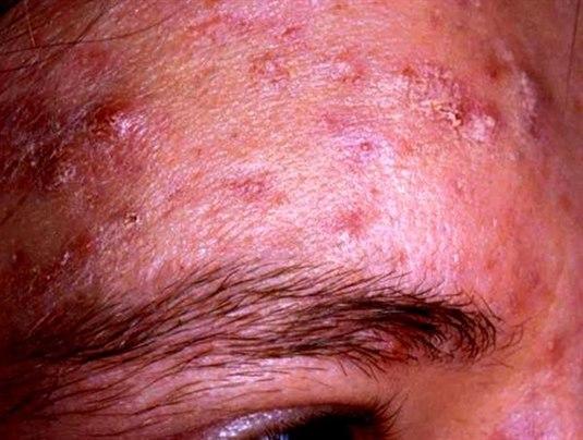 Acne papulopustulosa – mäßig bis schwer ausgeprägt