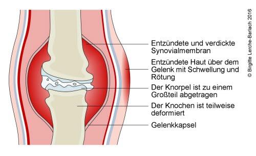 690-chronische-arthritis.jpg