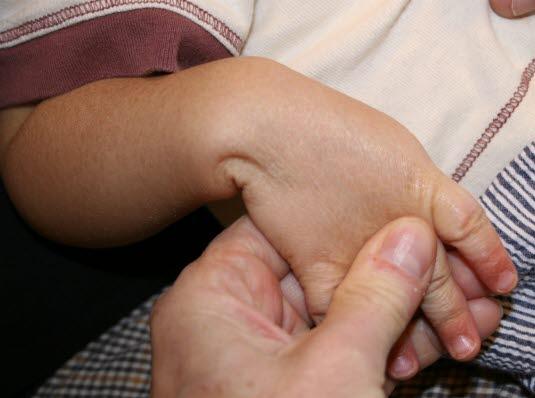 Ichthyosis. Die Schuppenbildung ist auf der Streckseite der Extremitäten am stärksten ausgeprägt.