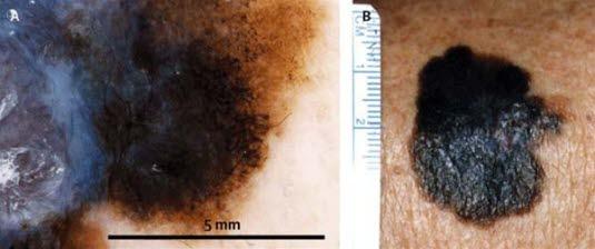 Dermatoskopisches Bild (A) eines malignen Melanoms, wie es mit dem bloßen Auge sichtbar ist (B). Die unterschiedlichen Farbnuancen, radialen Streifen, peripheren schwarzen Flecken und Klumpen und der bläulich-weiße Schleier sollten besonders beachtet werden.