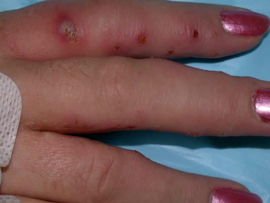 Dyshidrosis, infiziert