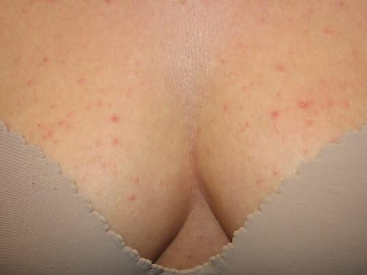 Malassezia-Follikulitis, Brust