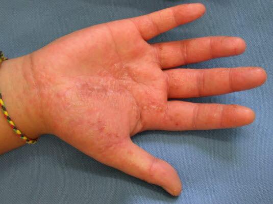 Dyshidrosis, Pompholyx an der Handfläche