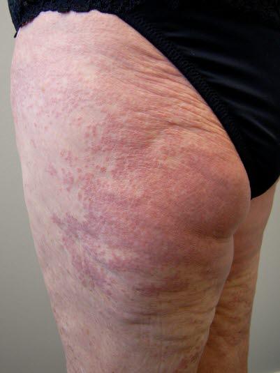 Disseminiertes Granuloma anulare