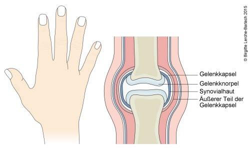 Abbildung eines normalen Gelenks (Fingergelenk)