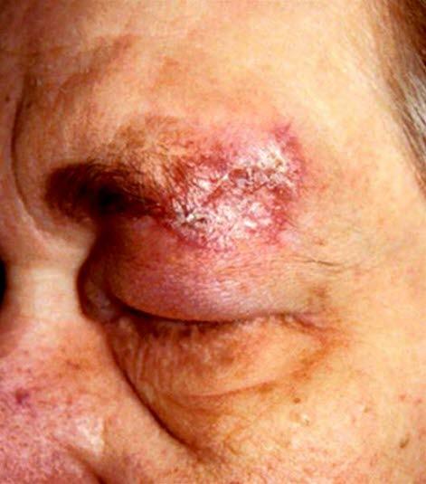 Diskoider Lupus erythematodes: scharf abgegrenzte, erythematöse, schuppende Plaques im Gesicht. Im Verlauf entwickeln sich atrophe Narben.