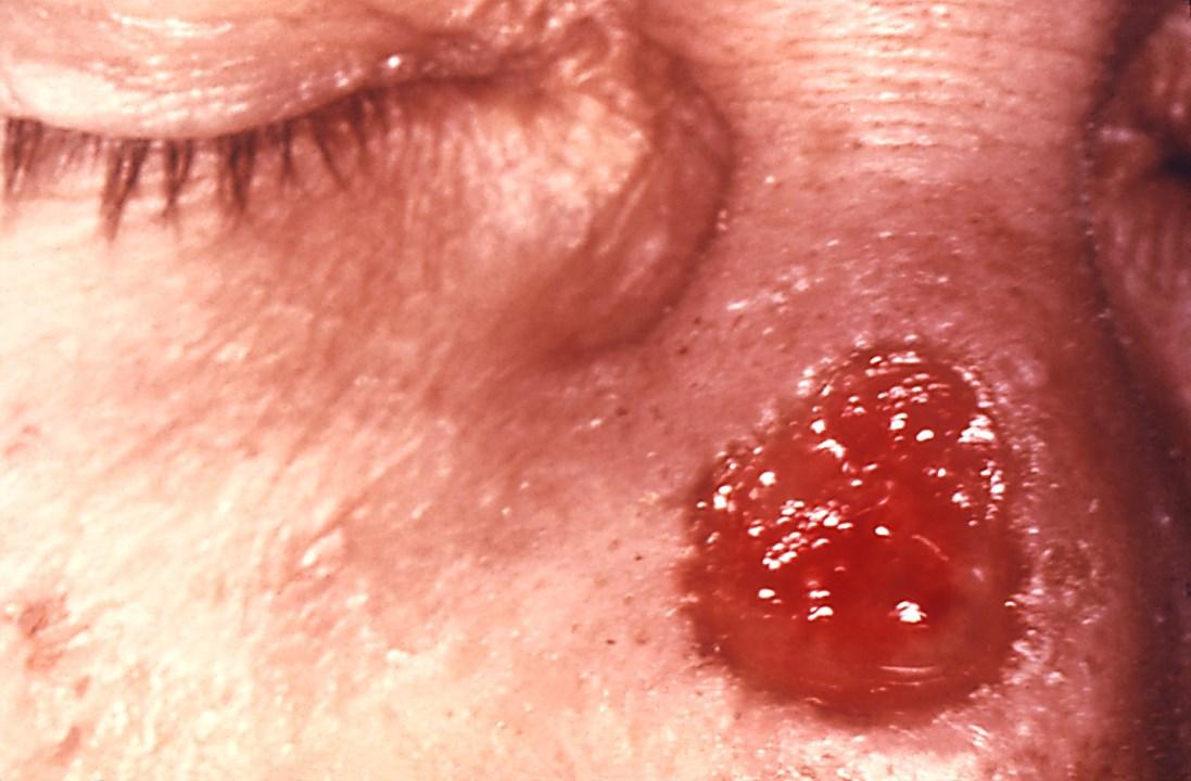 52607-2-tetrier-syfilis.jpg