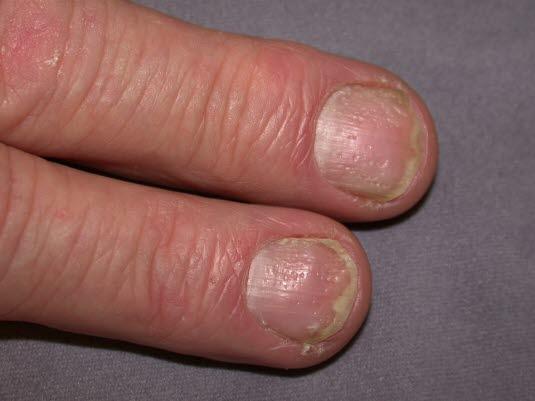 Grübchen oder Tüpfelnägel (punktförmige Vertiefungen) sind bei Psoriasis fast pathognomonisch.