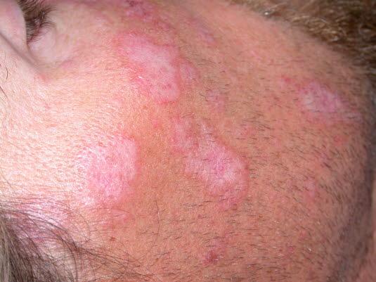 Diskoider Lupus erythematodes: Atrophe Narben mit aktivem, geröteten und hyperpigmentiertem Randsaum.