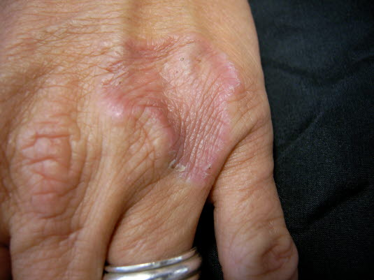 Lokalisiertes Granuloma anulare