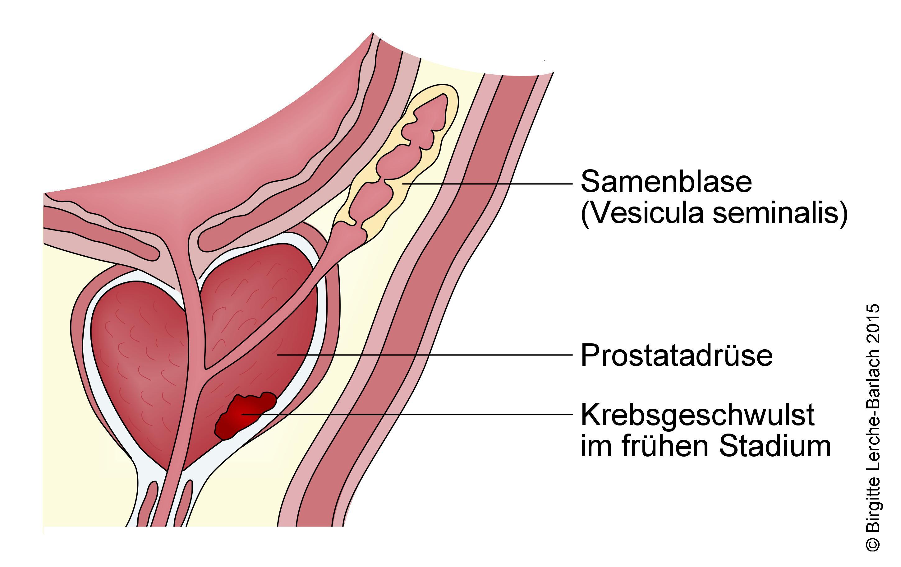 Prostatakrebs, Stadium 1.jpg