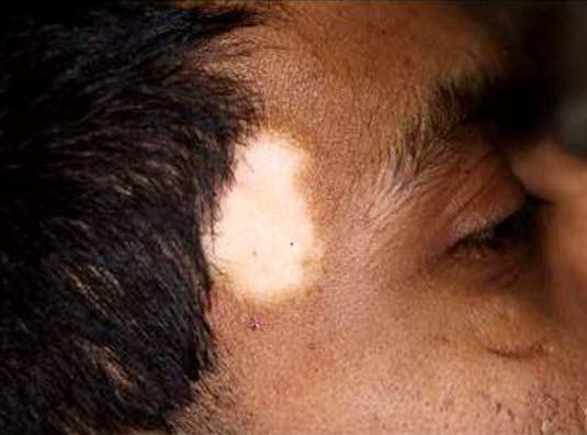 Prädilektionsstellen der Vitiligo sind das Gesicht, der Hals, die Kopfhaut und die Hände und Finger. Körperöffnungen sind auch häufig betroffen: die Lippen, Genitalien, Areola und Brustwarzen.