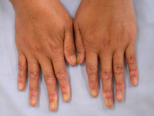 Eine begrenzte systemische Sklerose ist durch sklerotische Veränderungen an den Händen, im Gesicht, an den Füßen und Unterarmen gekennzeichnet sein.