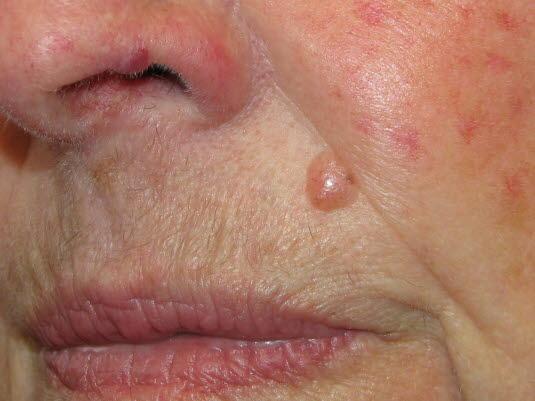 Noduläres Basalzellkarzinom. Ein Basalzellkarzinom kann auch ohne zu ulzerieren wachsen. Es wird dann nodulär oder zystisch mit einer charakteristischen perlmuttartig glänzenden Oberfläche mit Teleangiektasien.