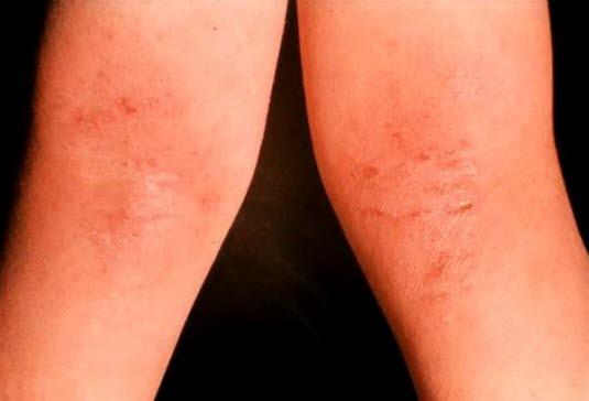 Neurodermitis in der Kniebeuge