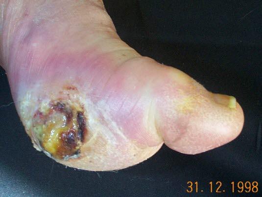 Diabetisches Fußgeschwür (Ulkus)