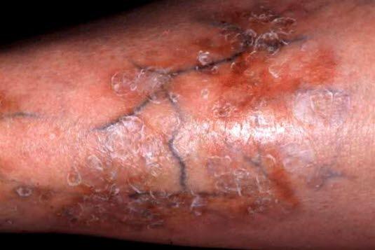Nekrobiose (Necrobiosis lipoidica): Bei einem typischen Verlauf zeigen sich die Hautläsionen anfangs als 1–3 mm große und scharf abgegrenzte Papeln oder Knoten mit aktivem Randbereich, die sich nach außen hin ausbreiten. Im Inneren der Läsion bilden sich runde oder ovale Areale von wachsartiger, atrophischer Beschaffenheit heraus.