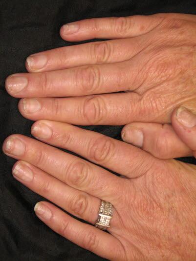 Etwa die Hälfte der Patient*innen mit Psoriasis entwickeln nach einer gewissen Erkrankungsdauer Nagelveränderungen.
