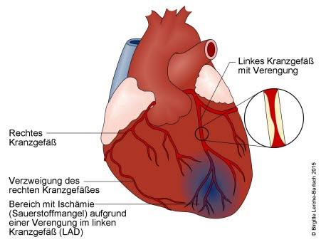 Durch eine Verengung des Herzkranzgefäßes durch Arteriosklerose (Arterienverkalkung) kommt es zu einer Unterversorgung des Herzmuskels mit Sauerstoff