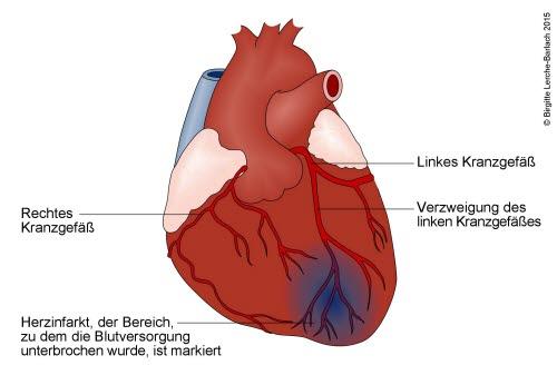 Herz mit Infarkt im Bereich des linken Herzkranzgefäßes