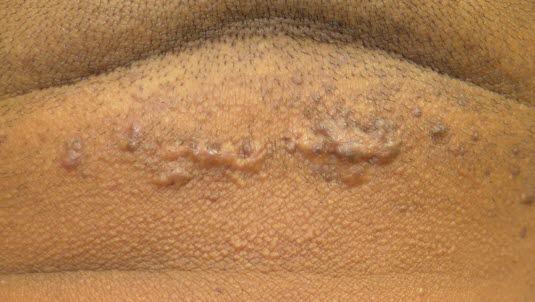 Haarwurzelentzündung, die Narben verursacht, und sich zu keloiden Narben weiterentwickeln kann.