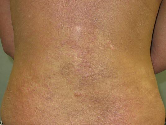 Chronische Hautveränderungen infolge eines atopischen Ekzems.
