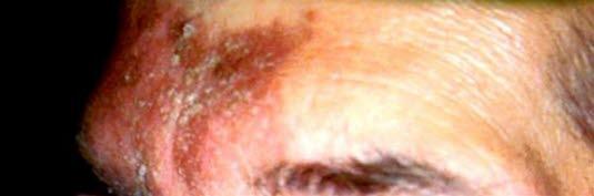 Seborrhoisches Ekzem im Stirnbereich.