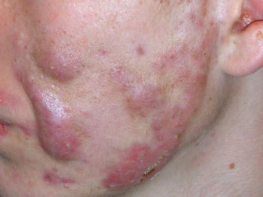 Acne cystica