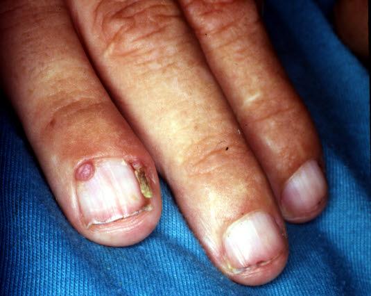 Tuberöse Sklerose. Periunguale oder gingivale Fibrome treten im Nagelbett oder unter den Nägeln in Erscheinung. Ihre Größe reicht von wenigen Millimetern bis zu einem Zentimeter.