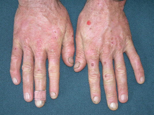 Porphyria cutanea tarda, Hände