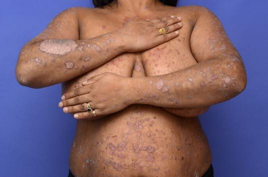 Die Psoriasis befällt vor allem die Streckseiten; in der Regel sind Handflächen, Fußsohlen und Gesicht nicht betroffen.