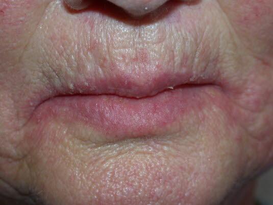 Mundwinkelrhagaden sind eine entzündliche Erkrankung, die schmerzhafte Läsionen in den Mundwinkeln verursacht. Schmerzen, Erythym und Fissurbildung sind typisch. Die Diagnose ist häufig mit einer Stomatitis durch die Verwendung von Zahnprothesen verbunden.