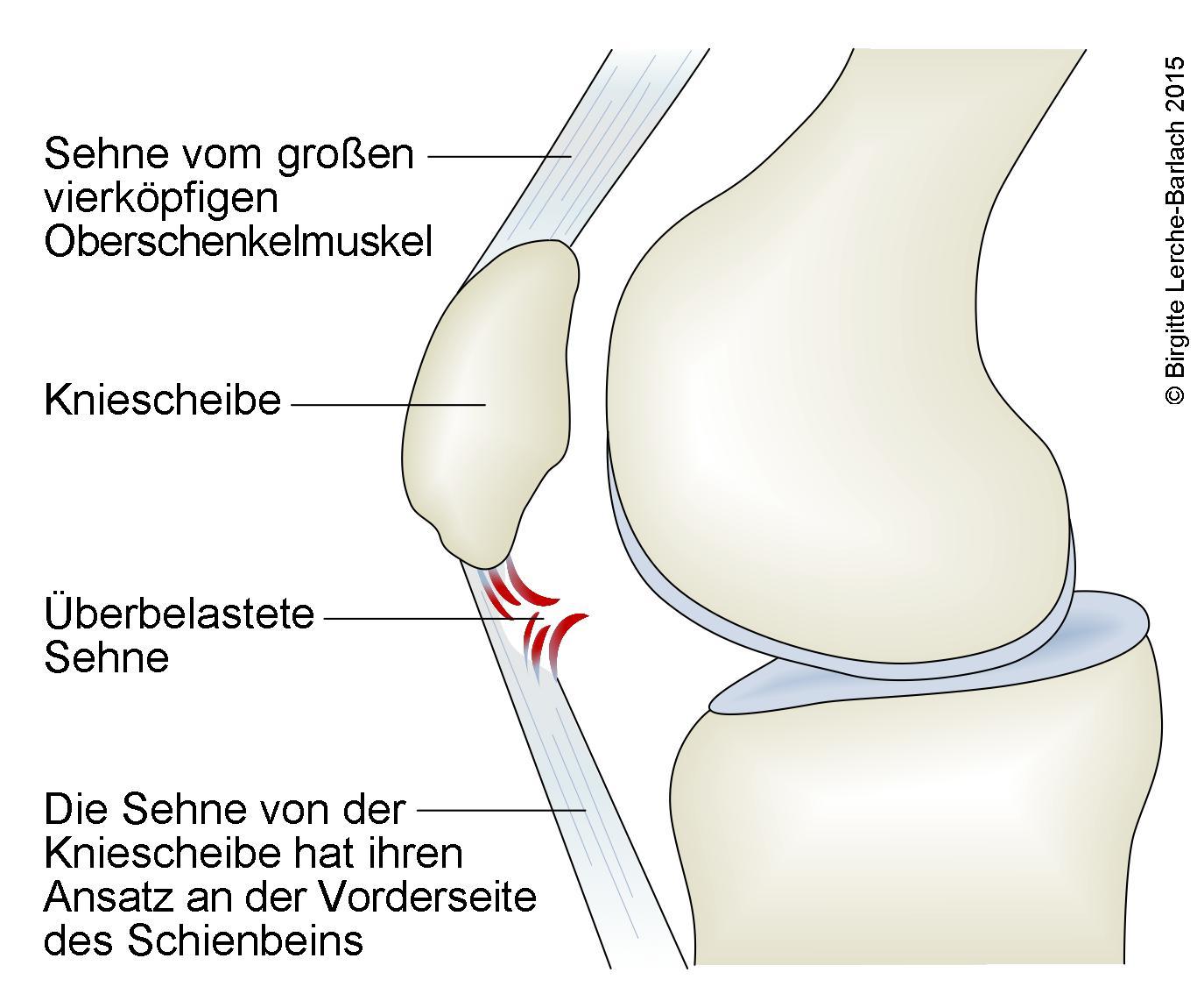 Springerknie (Jumper's knee).jpg