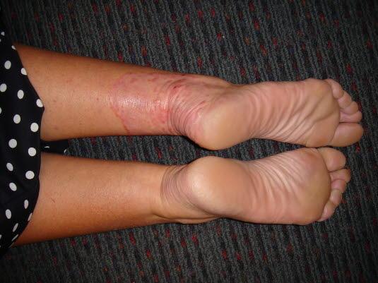 In der Randzone der Tinea corporis findet sich gerötete, leicht schuppende Haut, manchmal mit kleinen Bläschen und Pusteln.