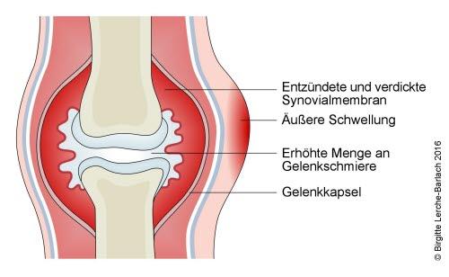 Akute Gelenkentzündung