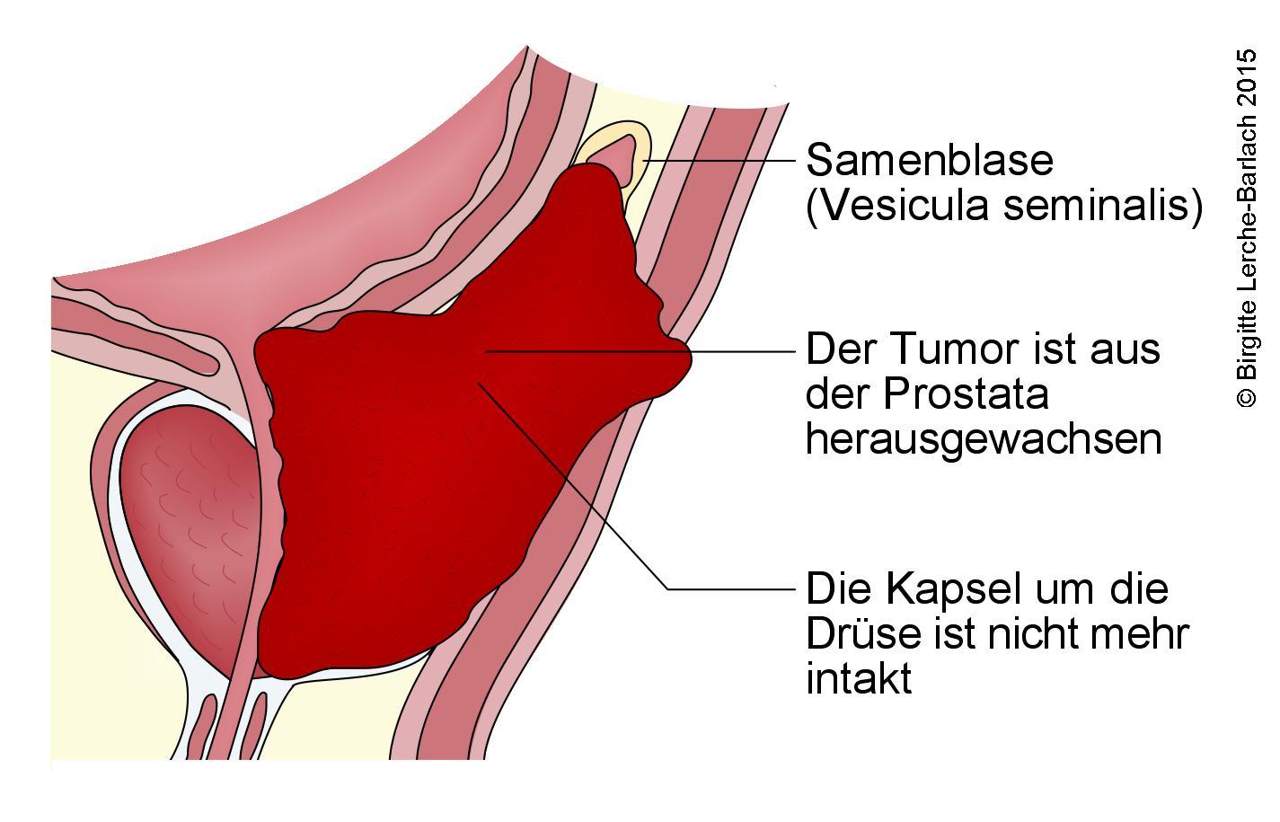 Prostatakrebs, Stadium 4.jpg