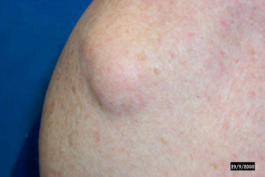 Ein Lipom ist ein weicher, gut abgrenzbarer Unterhauttumor, der sich im Verhältnis zum umliegenden Gewebe leicht verschieben lässt.
