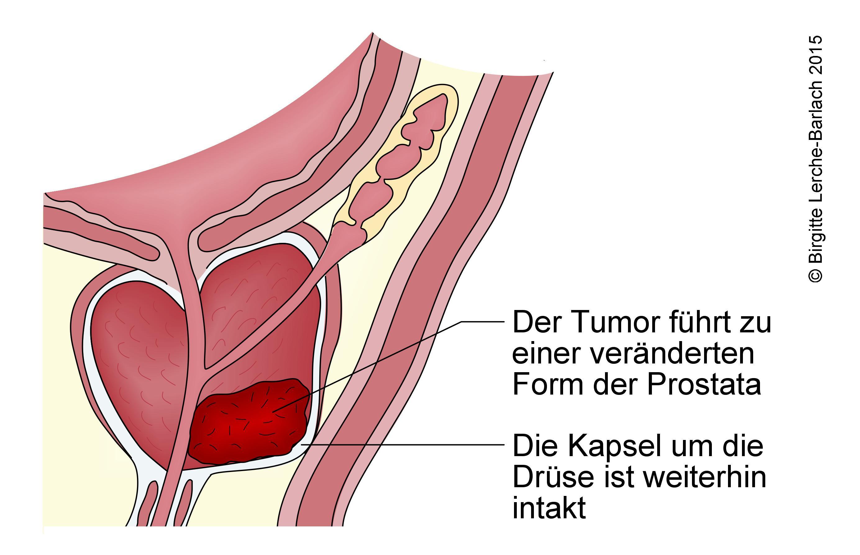 Prostatakrebs, Stadium 2.jpg