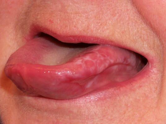 Die Zungenschleimhaut, das Zahnfleisch und die Lippen können alle bei Lichen ruber betroffen sein.
