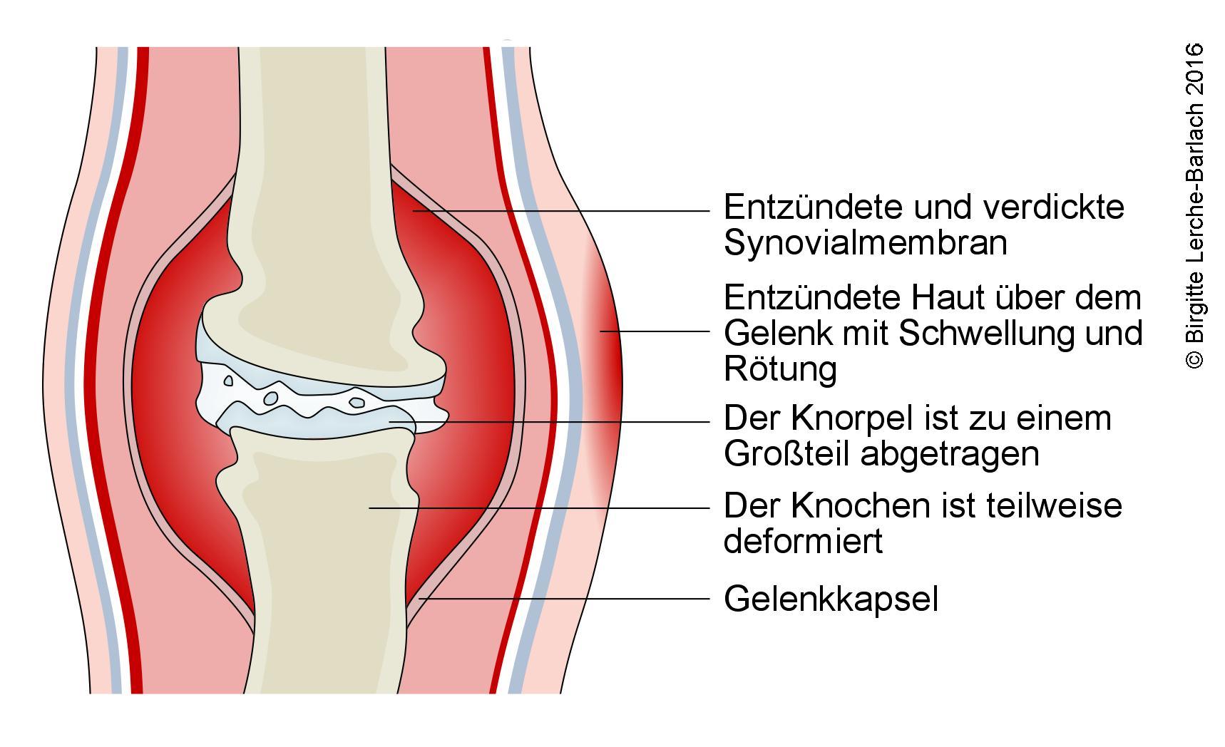 Chronische Arthritis.jpg