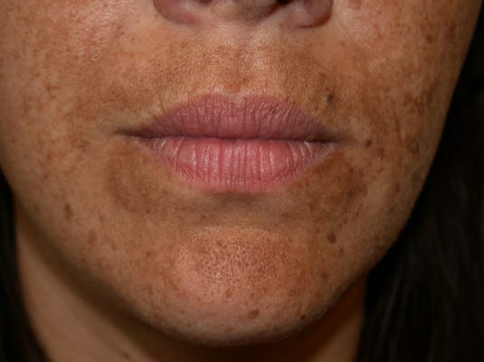 Hautkrankheit während der Schwangerschaft, Melasma